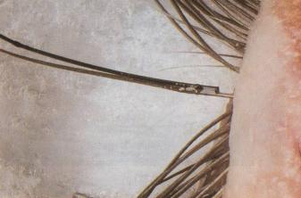 репление искусственной ресницы с боку натуральной