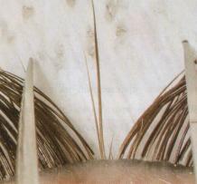 Пинцетом выделены две натуральные ресницы.